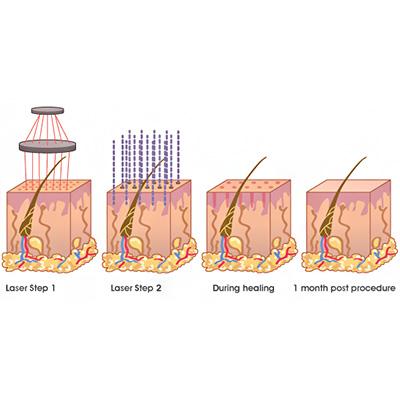 Laser for Tumor Elimination