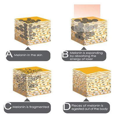 Laser for Skin Care
